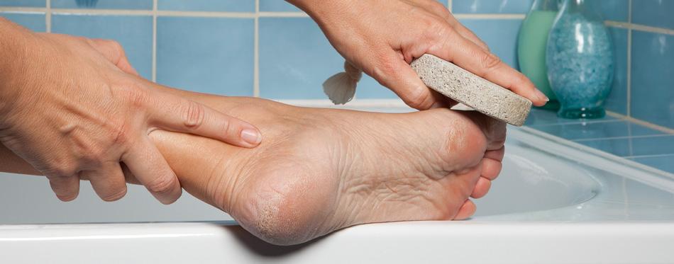 using pumice stone