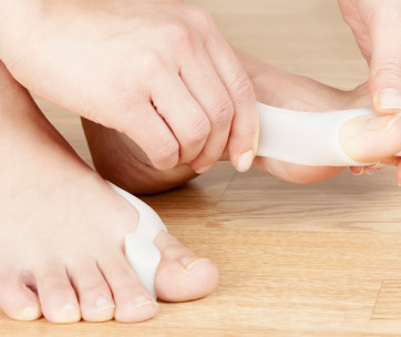 10 ways to stop bunions growing